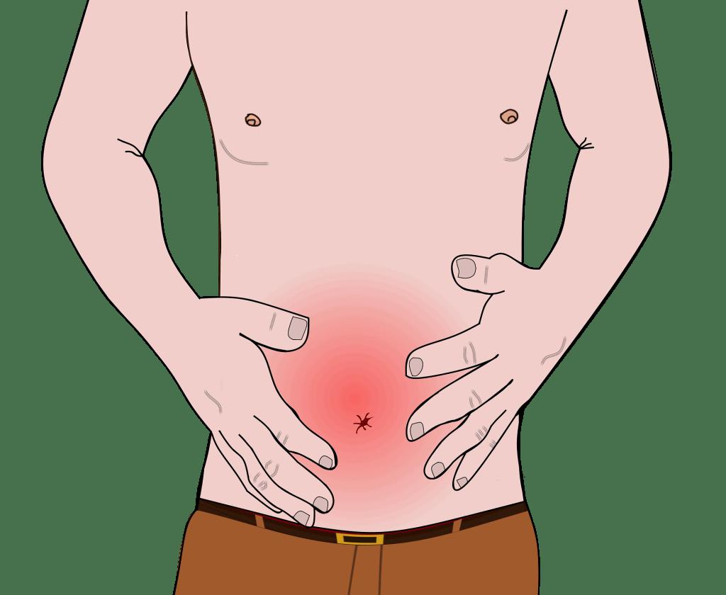 reizdarmsyndrom pilz im darm